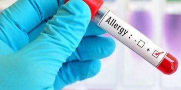 Testarea cutanata in diagnosticul alergiei