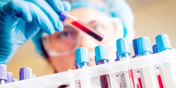 Teama de malformatii: de la Dublu Test, la Panorama si amniocenteza