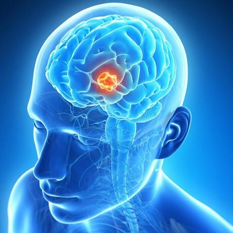 tumoarea cerebrală provoacă pierderea în greutate)