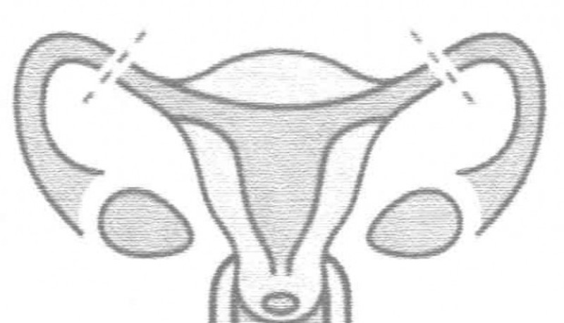 Ligatura trompelor uterine – sarcina dupa