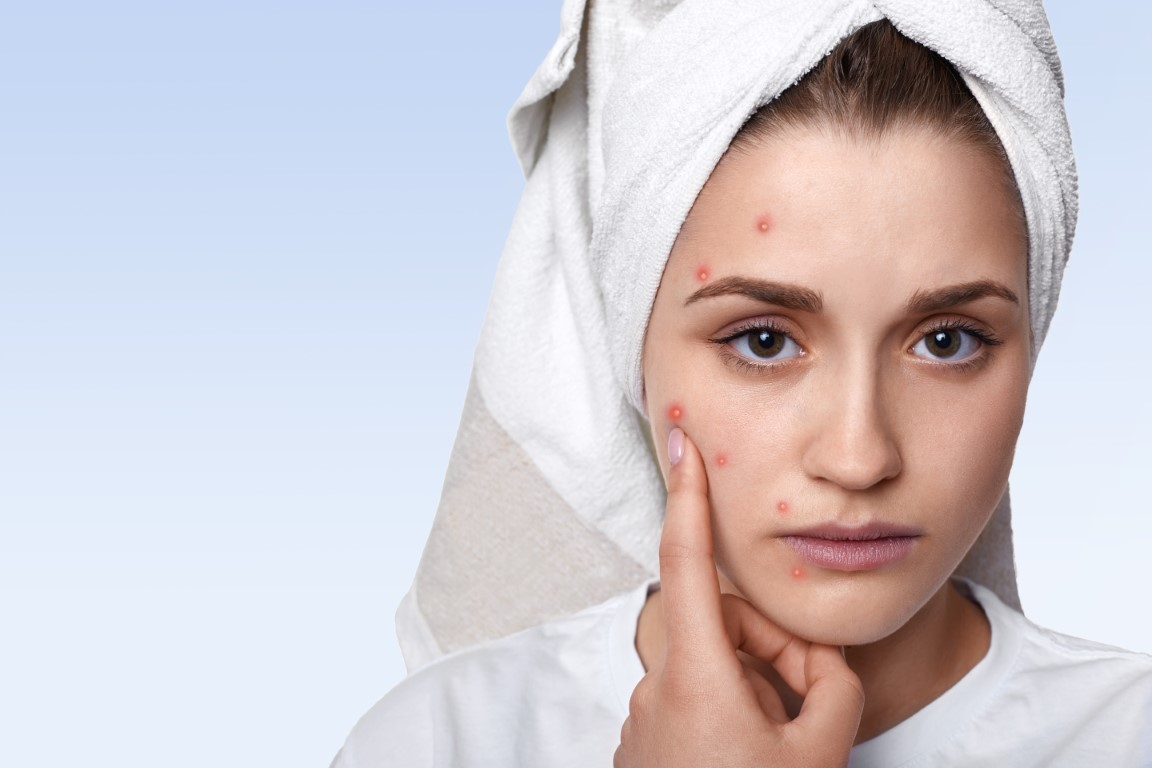 sindrom premenstrual acnee